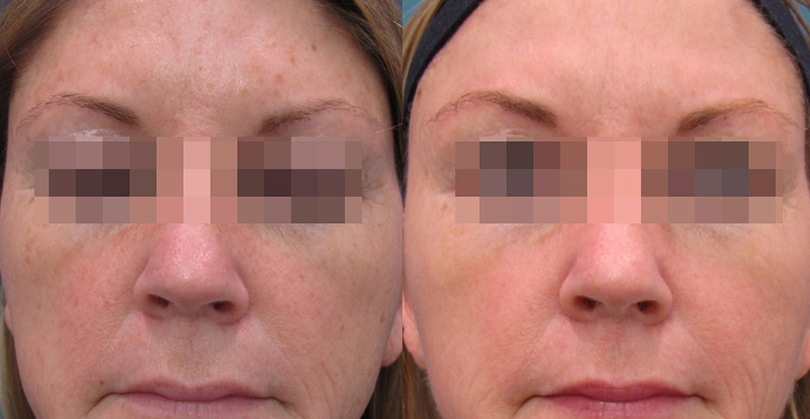 Intense Pulsed Light Before and After 3