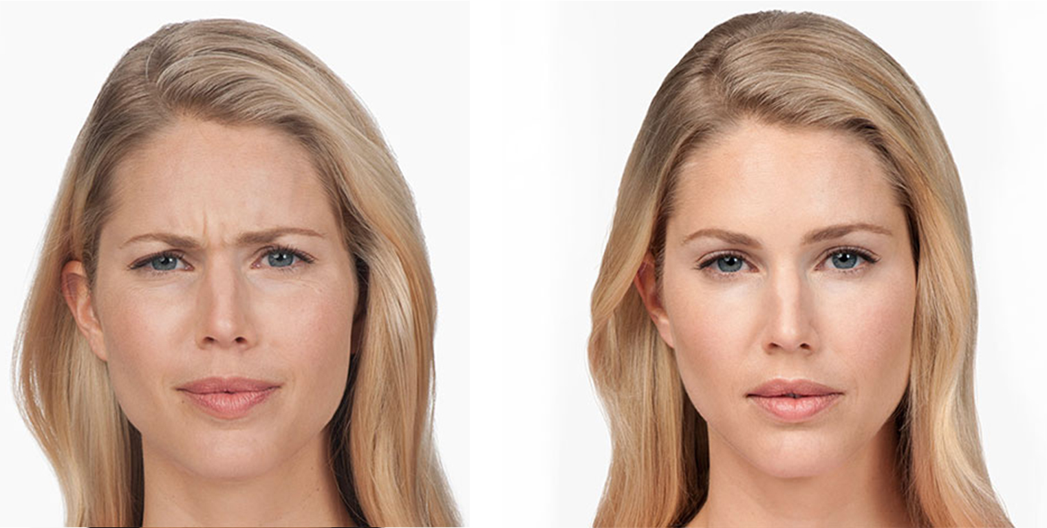 Botox Before and After 3