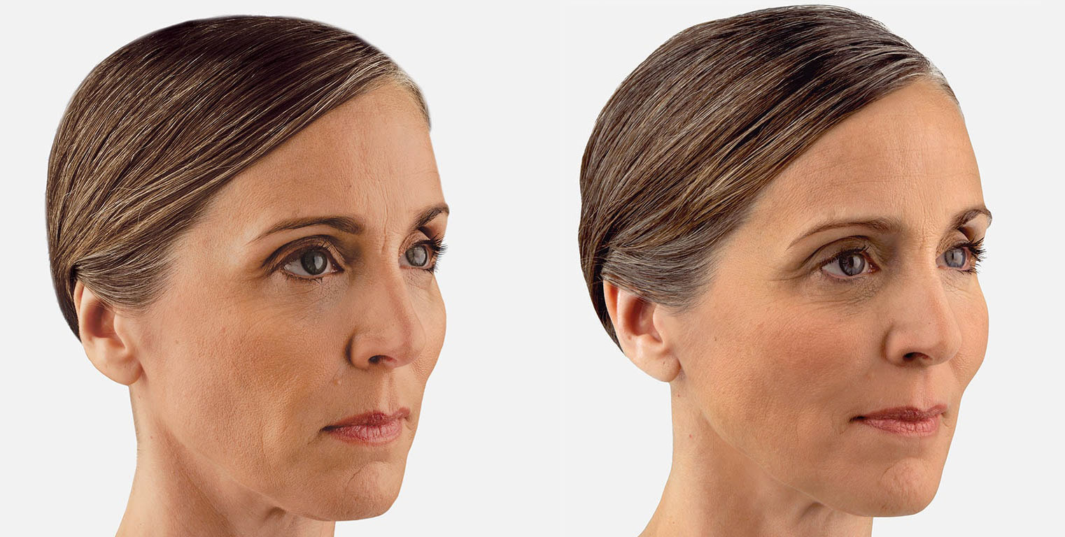 Dermal Fillers Before and After 3