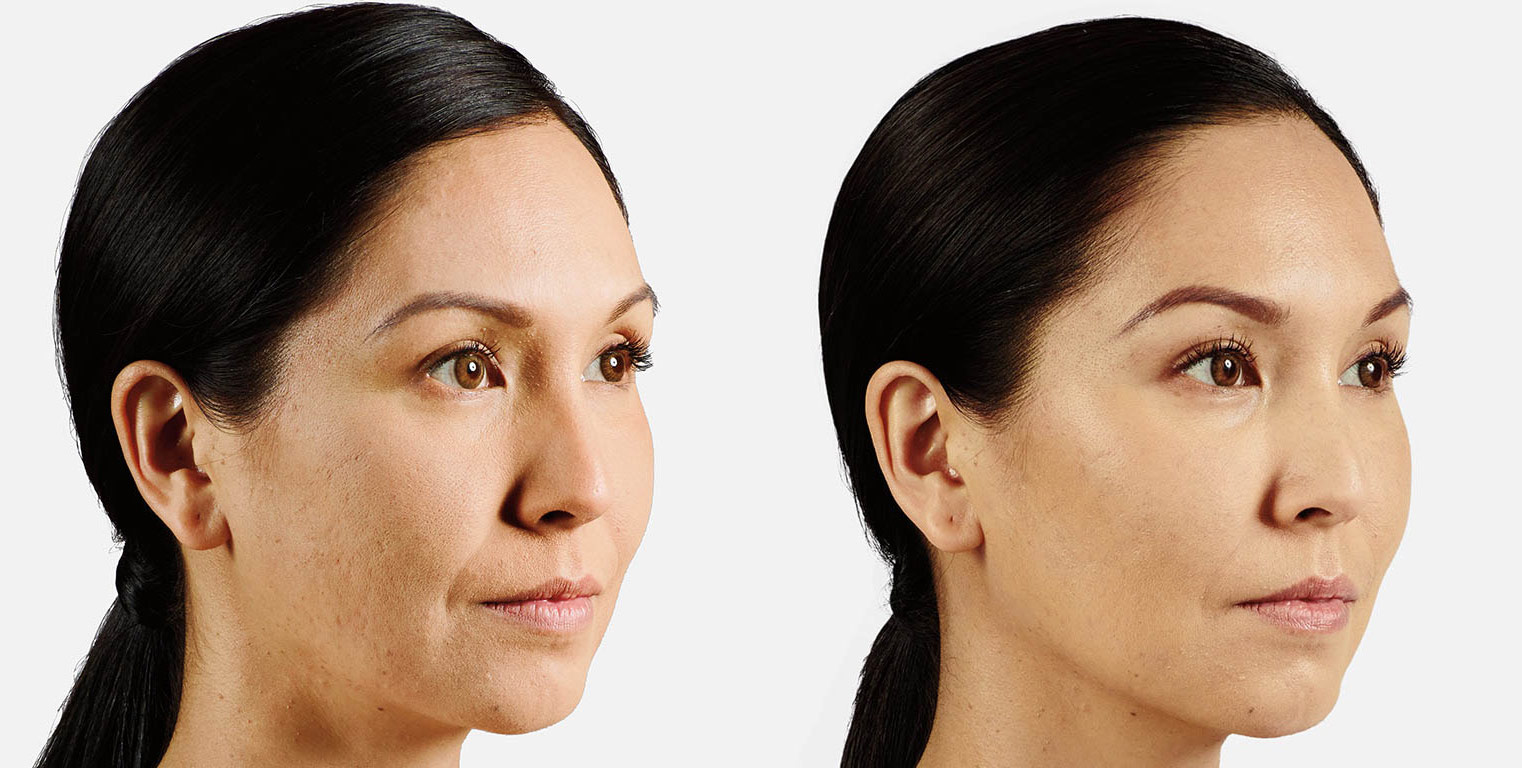 Dermal Fillers Before and After 2