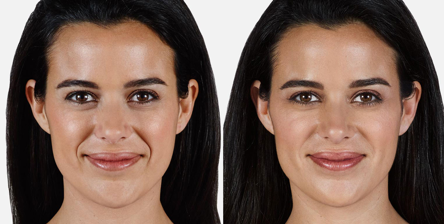 Dermal Fillers Before and After 1