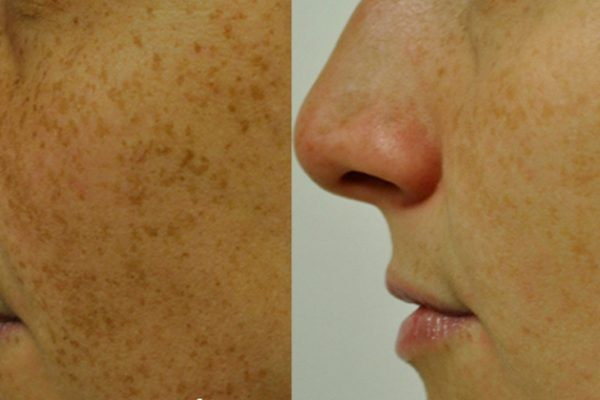 Intense Pulsed Light Before and After 2