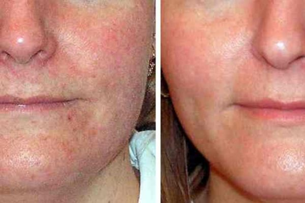 Laser Acne Treatment 2