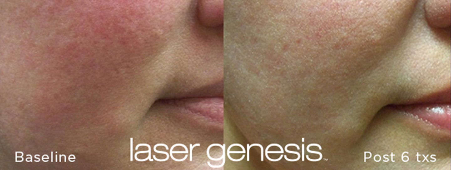 Laser Genesis Before and After 2
