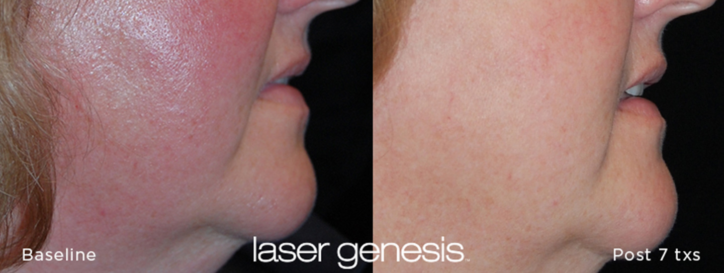 Laser Genesis Before and After 1