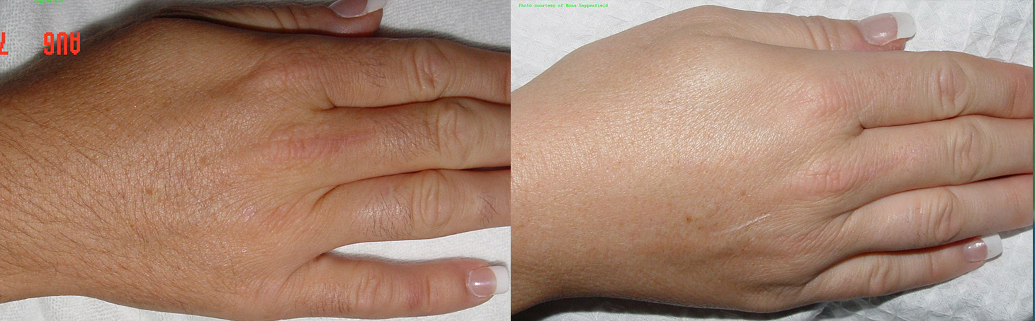 Laser Hair Removal Before and After 2