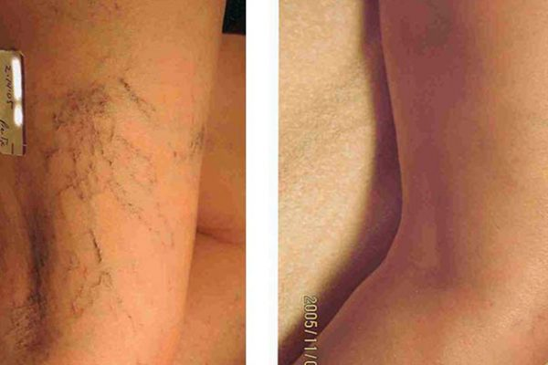Leg Vein Treatment Before and After 3