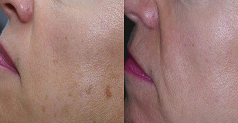 Intense Pulsed Light Before and After