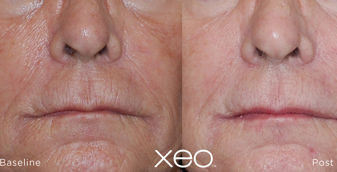 Laser Skin Resurfacing Before and After 2