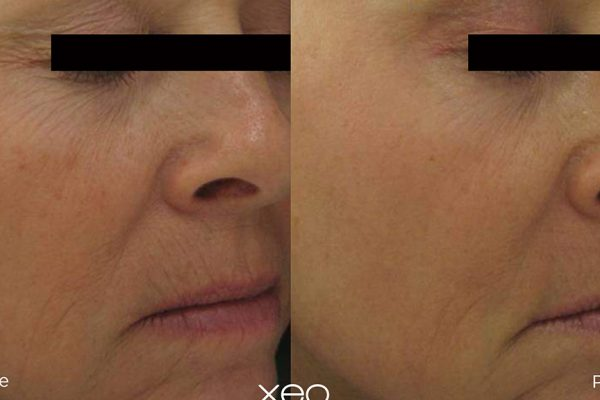 Laser Skin Resurfacing Before and After 3