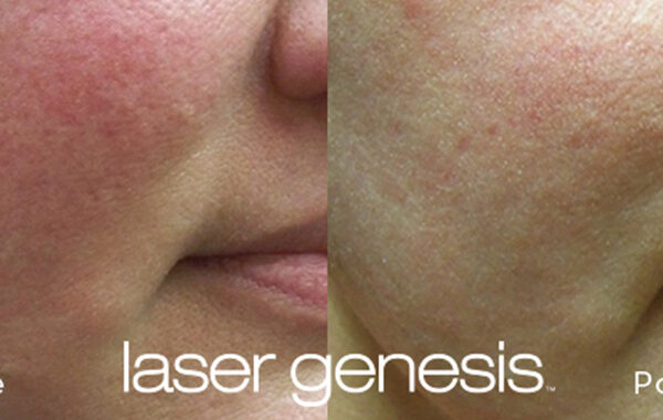 Rosacea Treatment Before and After 1
