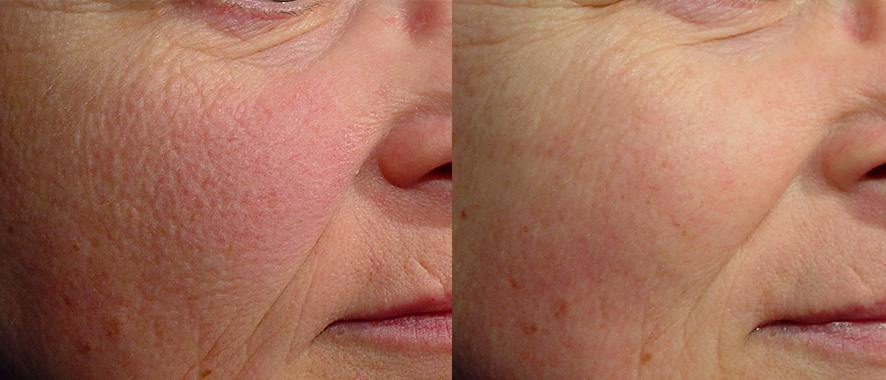 Rosacea Treatment Before and After 2