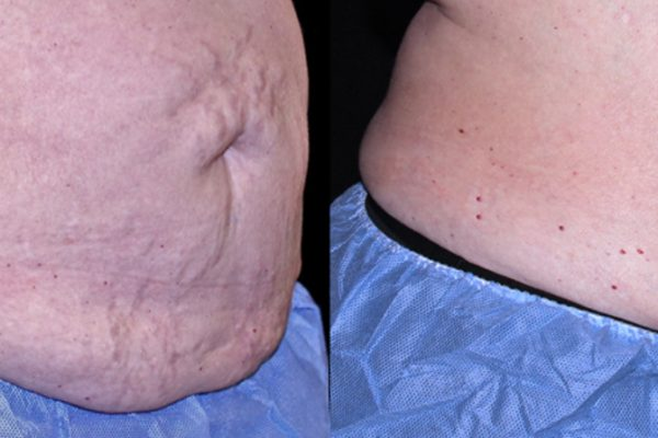 TruSculpt 3D Body Contouring Before and After 3
