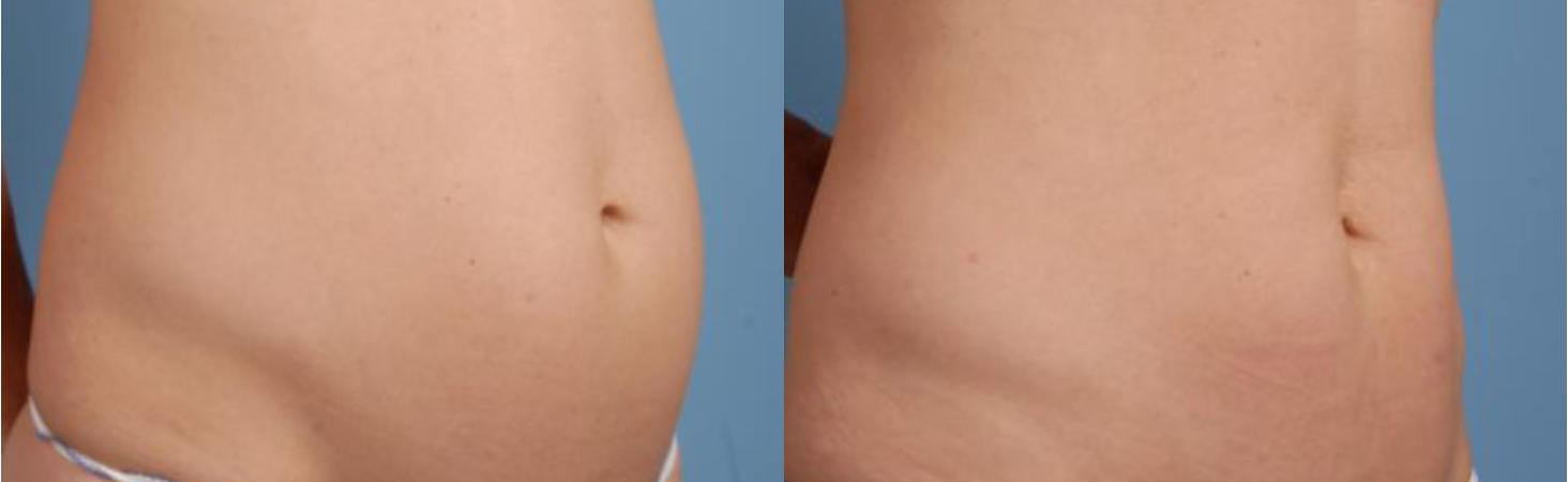 TruSculpt 3D Body Contouring Before and After 1