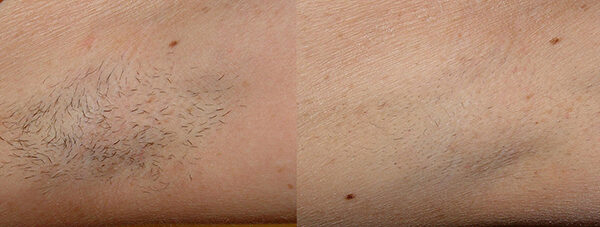 Laser Hair Removal Before and After 3